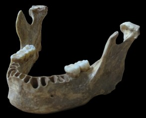 """A reconstruction of the unique jawbone of the """"Oase Man""""   Credit: Svante Pääbo, Max Planck Institute for Evolutionary Anthropology"""